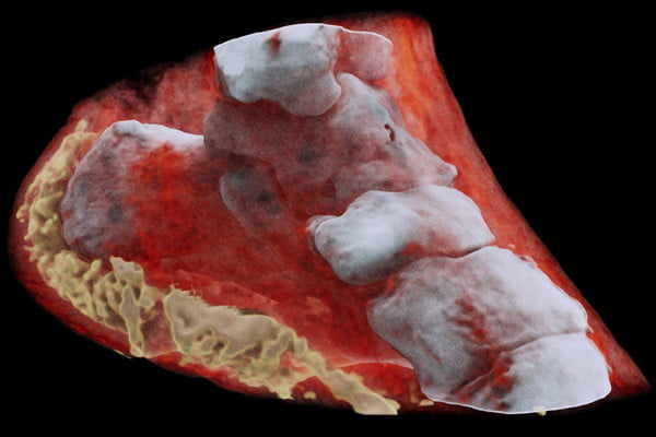 color x ray scanner photos ankle left view