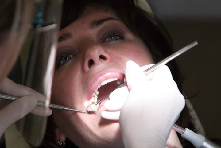 drug releasing tooth implant female patient at the dentist