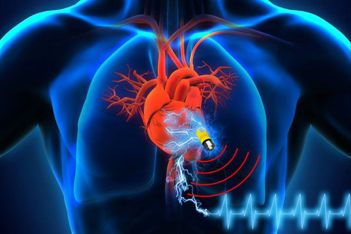medical devices at risk of hacking pacemaker